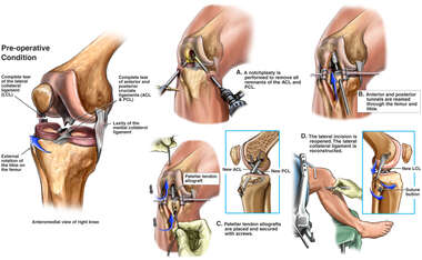 Tear of the ACL, PCL and Lateral Collateral Ligament with Reconstructive Surgery