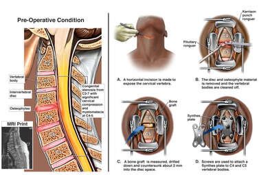 Anterior Cervical Discectomy and Fusion Surgery