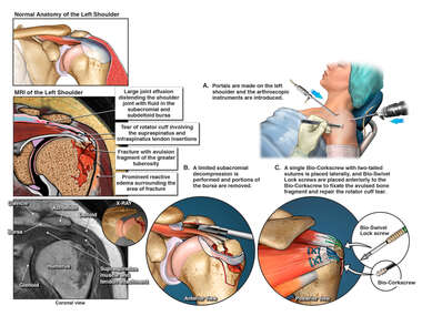 Left Shoulder Rotator Cuff tear and Fracture with arthroscopic Surgical Decompression and Repair