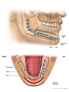 Mandible Surgical Reconstruction