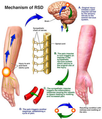 Post-traumatic Reflex Sympathetic Dystrophy (RSD) of the Upper Extremity and Hand
