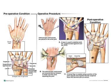 Arthroscopic and Open Surgical Repairs to Internal Derangement Right Wrist