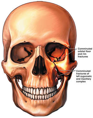 Left Frontal, Orbital and Maxillary Fractures of the Skull