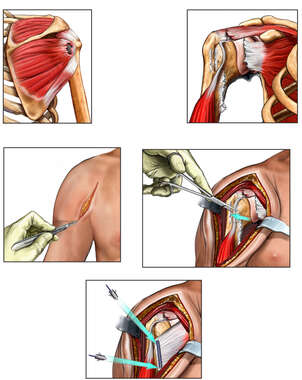 Right Shoulder Injury with Surgical Repairs