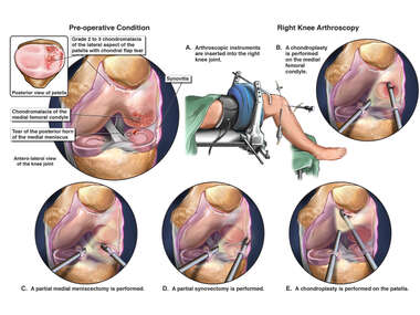 Right Knee Injuries with Surgical Repair