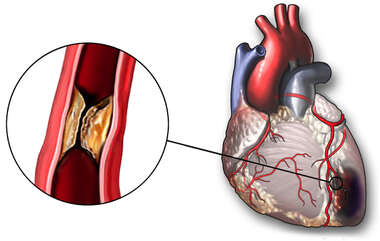 Blocked Coronary Artery