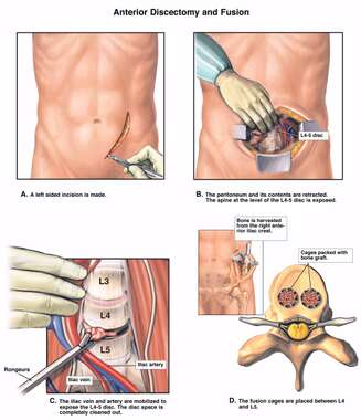 L4-5 Anterior Discectomy and Spinal Fusion Procedures