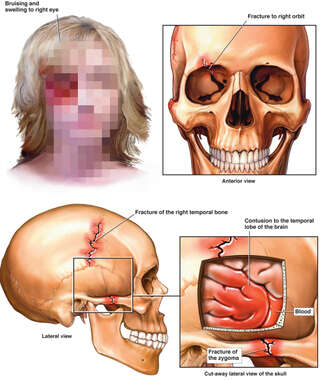 Head Injury resulting in Hemorrhage