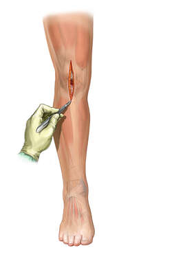 Knee-Midline Incision