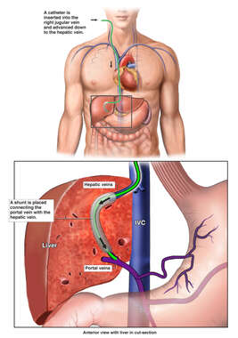 Catheter Insertion into Right Jugular Vein