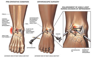 Post-accident Ankle Impingement with Arthroscopic Surgery