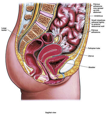 Intra-abdominal and Pelvic Adhesions