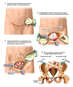 Surgical Fixation of the Pelvis