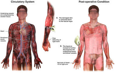 Surgical Procedures to Restore Circulatory System