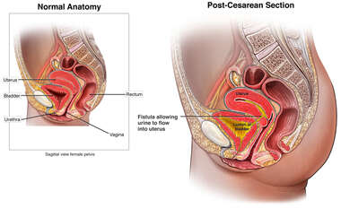 Fistula Formation Following Cesarean Section (C-section)