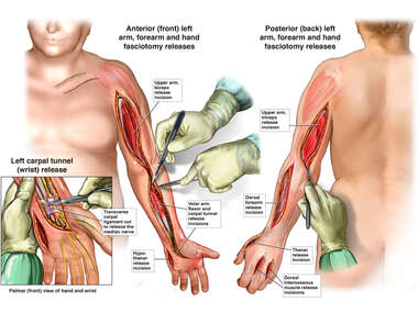 Fasciotomies and Carpal Tunnel Release (left arm)