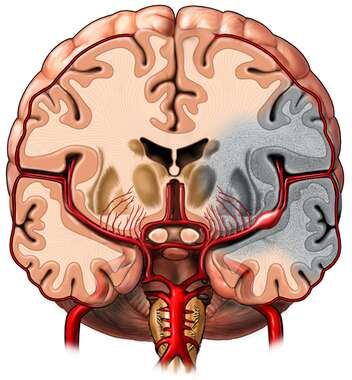 Cerebral Aneurysm, Cut-away View