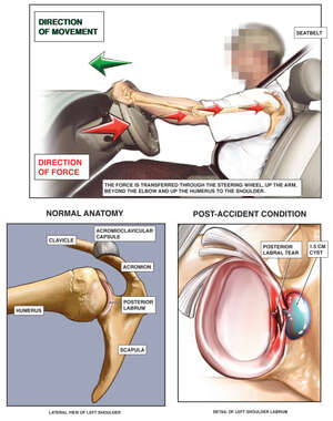 Mechanism of Shoulder Injury in Motor Vehicle Accident (MVA)