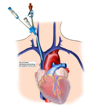 Placement of Venous Catheter with Resulting Vascular Injury