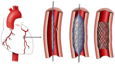 Coronary Artery Stent Placement