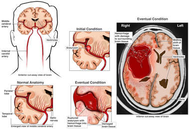 Rupture of Cerebral Aneurysm