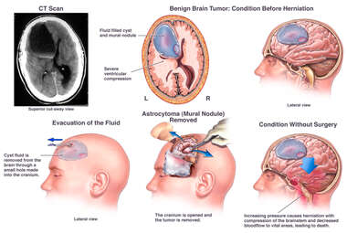 Brain Surgery - Removal of Brain Tumor and Cyst