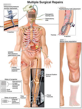 Male Figure with Surgical Images of ICP, Tracheotomy, Lower Leg Fixation and Amputation