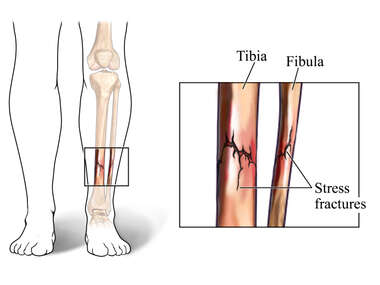 Stress Fractures of the Tibia and Fibula