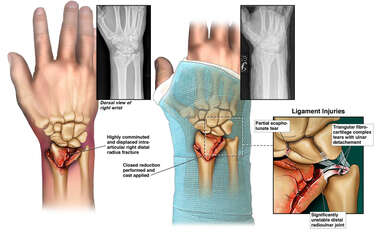 Right Wrist Injury