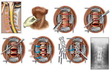 Cervical Spine Injuries with Triple Level Surgical Fusion