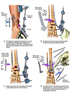 Additional Surgical Repairs to the Right Ankle
