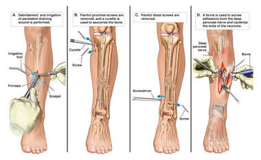 Subsequent Left Leg Surgeries