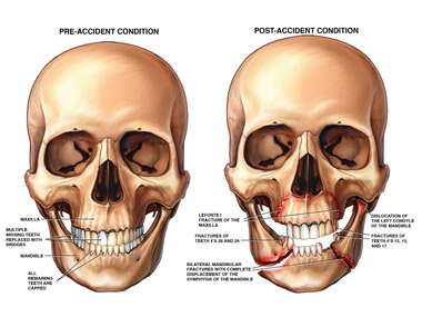 Post-accident Facial Injuries