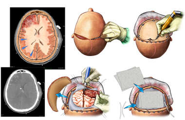 Craniectomy and Right Frontal Partial Lobectomy