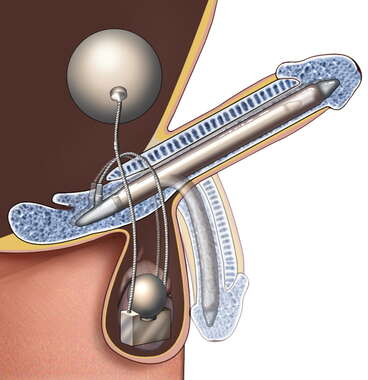 Penile Implant, Cut-away View