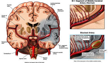 Left Middle Cerebral Artery Blockage