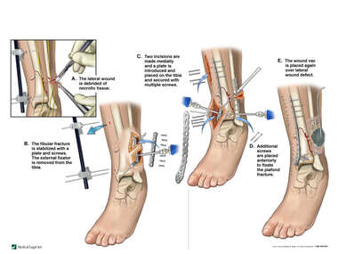 Open Reduction and Internal Fixation of Distal Tibia and Fibular Fractures
