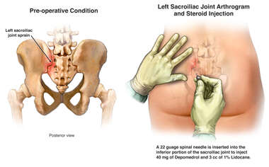 Sacroiliac joint steroid injection