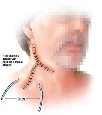 Post-operative Appearance Following Surgical Closure of the Neck