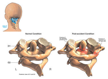 C1-2 (Atlas and Axis) Cervical Spine Fractures