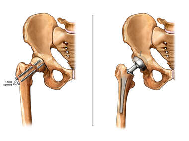 Broken Hip Surgery and Total Hip Replacement Surgery