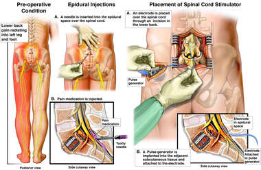 Spinal Cord Injections and Future Surgery to Implant Spinal Cord Stimulator
