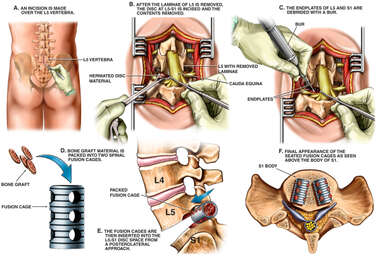 Laminotomy, Discectomy and Spinal Fusion