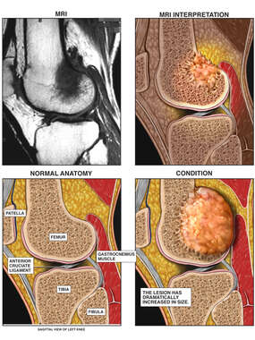 Progressive Growth of Bony Lesion in the Knee