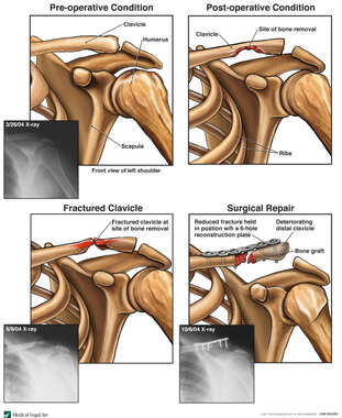 Surgical Deformity of the Clavicle with  Subsequent Fracture and Necessary Fixation