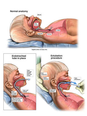 Pediatric Extubation