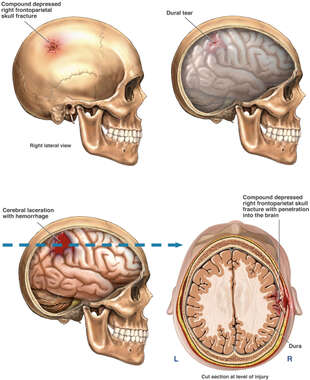 Head Injuries: Skull Fracture with Brain Laceration and Hemorrhage