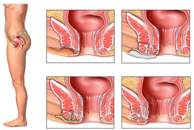 Progression of Sphincteroplasty Failure