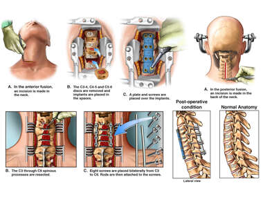 Multilevel Anterior and Posterior Cervical Fusion