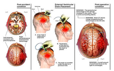 Bitemporal Brain Injuries with Insertion of Ventricular Drain